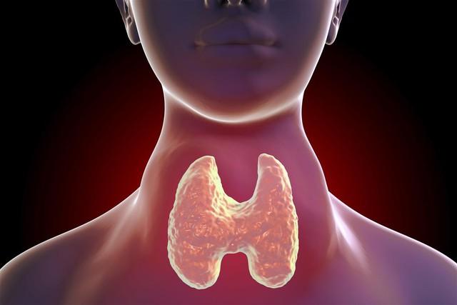 Bệnh tuyến giáp là sát thủ thầm lặng đối với phụ nữ, nhưng gần 60% không biết mình mắc bệnh: Có thể biến thành ung thư nếu không duy trì lối sống lành mạnh! - Ảnh 4.