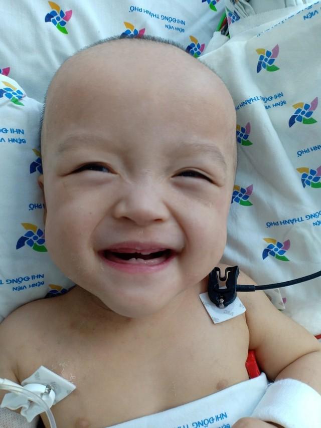 Hình ảnh đốn tim của Trúc Nhi - Diệu Nhi sau ca mổ tách rời 20 ngày - Ảnh 2.
