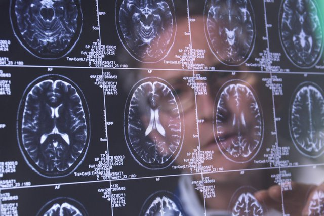 Phát hiện mới: Theo đuổi lối sống lành mạnh ở tuổi trung niên sẽ giúp giảm 40% nguy cơ suy giảm trí nhớ khi về già - Ảnh 1.