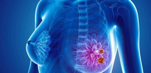 Có thể phát hiện được dấu hiệu sớm của ung thư vú? - Ảnh 1.