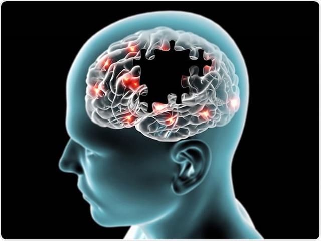 Không chỉ người già, người trẻ đã phải đối mặt với bệnh sa sút trí tuệ: Đây là điều nên làm - Ảnh 2.