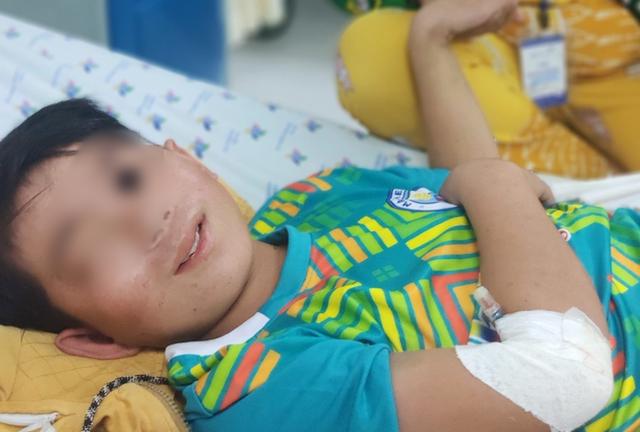 Bé trai 13 tuổi biến chứng suy đa cơ quan nặng vì sốt xuất huyết: Bác sĩ cảnh báo căn bệnh nguy hiểm - Ảnh 3.