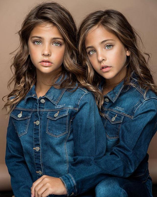 Cặp song sinh được mệnh danh đẹp nhất thế giới, 6 tháng tuổi đã nhận hợp đồng quảng cáo có ngoại hình thay đổi ra sao sau 10 năm? - Ảnh 6.