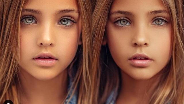 Cặp song sinh được mệnh danh đẹp nhất thế giới, 6 tháng tuổi đã nhận hợp đồng quảng cáo có ngoại hình thay đổi ra sao sau 10 năm? - Ảnh 10.