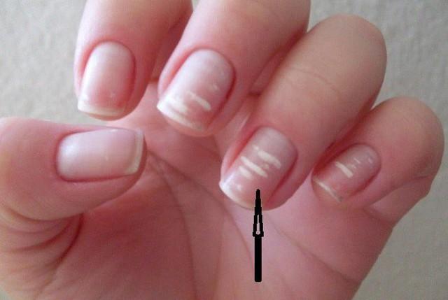 """4 dấu hiệu trên móng tay """"chỉ điểm"""" trong người bạn đang có mầm bệnh - Ảnh 1."""