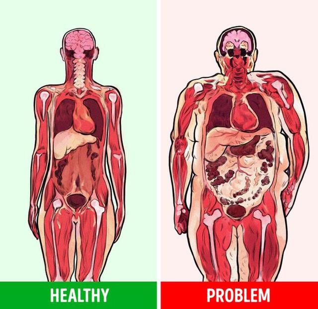 Mỡ bụng không chỉ làm bạn xấu đi, 5 mối nguy hiểm này còn khiến sức khỏe tồi tệ hơn - Ảnh 2.