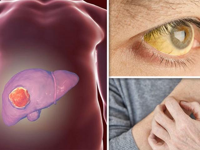 WHO công nhận đây là chất gây ung thư hạng nhất và ẩn náu trong nhiều loại thực phẩm mà nhiều người vẫn không nỡ vứt đi  - Ảnh 3.