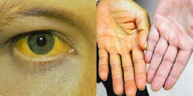 Bác sĩ nhắc nhở: Trong cơ thể xuất hiện 2 vàng, 2 đỏ, nếu bỏ qua cẩn thận gan hỏng - Ảnh 3.