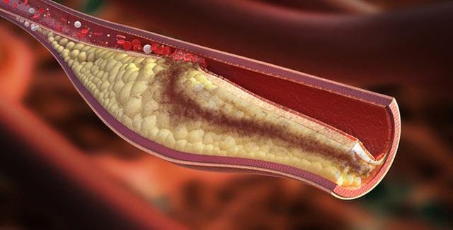 Cholesterol cao là nguyên nhân gây bệnh tim mạch và đột quỵ sớm: Cần nắm 5 cách để xử lý nhanh gọn chỉ trong thời gian ngắn - Ảnh 1.