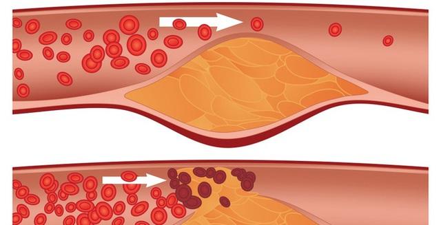 3 thực phẩm có thể quét sạch rác trong mạch máu: Vừa rẻ vừa tốt cho người bệnh huyết áp - Ảnh 1.
