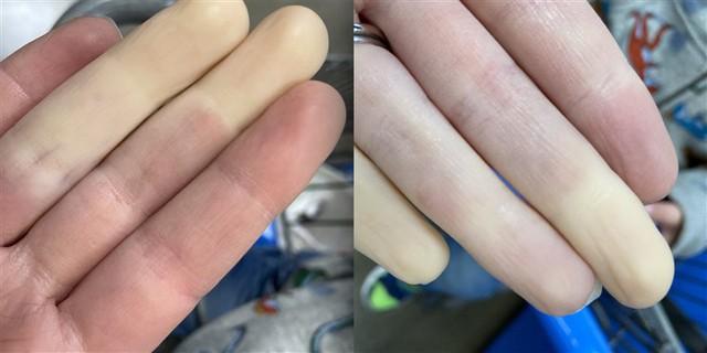 """Căn bệnh lạ khiến tay chân """"bay màu"""" khi trời lạnh là có thật! - Ảnh 3."""