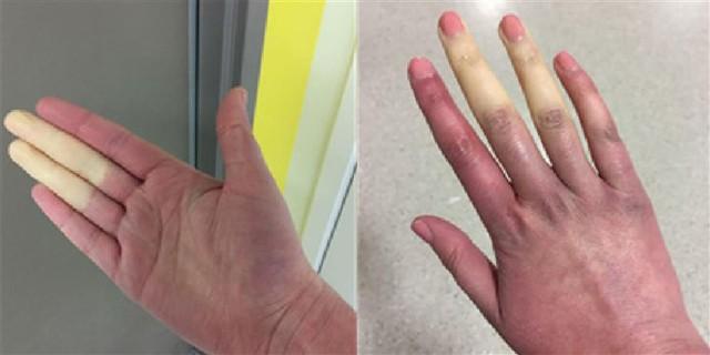 """Căn bệnh lạ khiến tay chân """"bay màu"""" khi trời lạnh là có thật! - Ảnh 2."""