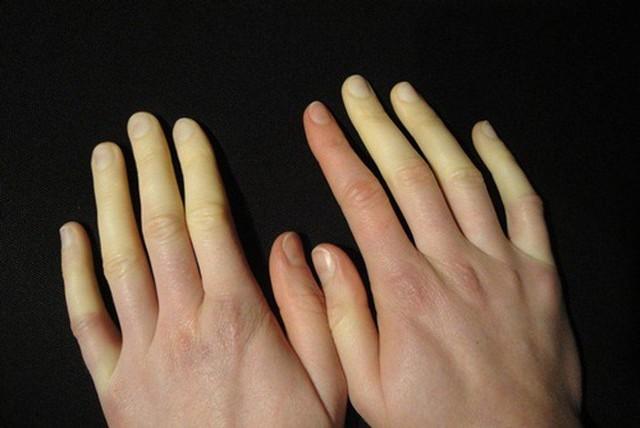 """Căn bệnh lạ khiến tay chân """"bay màu"""" khi trời lạnh là có thật! - Ảnh 1."""