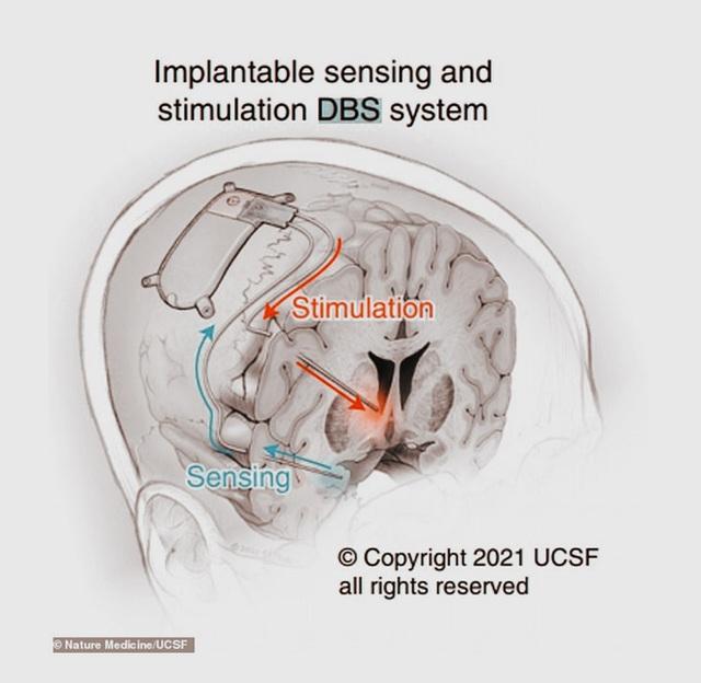 Hạnh phúc chạy bằng pin: Bệnh nhân đầu tiên trên thế giới chữa khỏi trầm cảm nhờ phẫu thuật kích thích não - Ảnh 4.