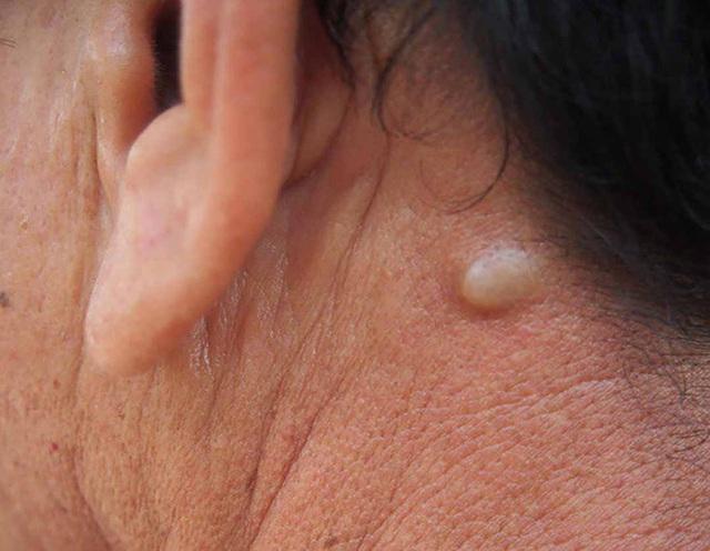 3 thay đổi trên cổ có thể là dấu hiệu sớm của bệnh ung thư mà bạn không nên chủ quan bỏ qua - Ảnh 3.