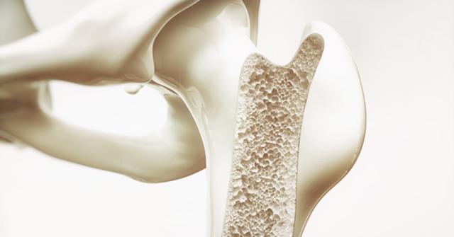 4 nhầm lẫn phổ biến liên quan đến xương khớp, nếu bạn mắc phải thường xuyên sẽ khiến xương ngày càng xuống cấp - Ảnh 1.