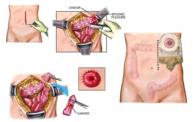 Người đàn ông phải cắt bỏ hậu môn do ung thư trực tràng, nguyên nhân xuất phát từ thói quen sinh hoạt xấu mà nhiều người trẻ mắc phải - Ảnh 3.
