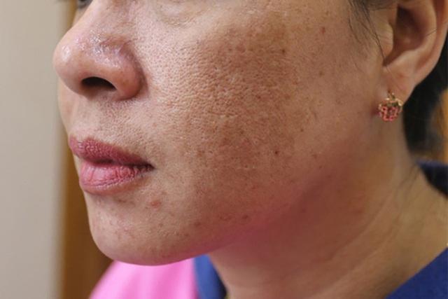 Sáng ngủ dậy thấy 3 điểm bất thường trên mặt là dấu hiệu cảnh báo gan xấu, xem thử bạn có triệu chứng nào hay không - Ảnh 2.