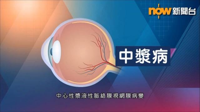 BS nhãn khoa: Người trẻ sử dụng điện thoại, máy tính nhiều có thể mắc bệnh mắt vĩnh viễn - Ảnh 4.