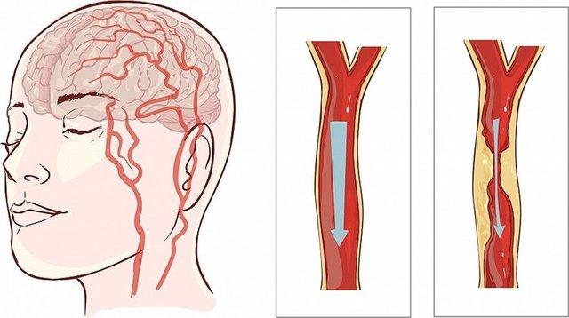 Người đàn ông 40 tuổi bị nhồi máu não, bác sĩ chỉ rõ: Ăn sáng theo 2 kiểu này thì sớm muộn mạch máu cũng bị tổn thương, tăng nguy cơ đột quỵ - Ảnh 1.