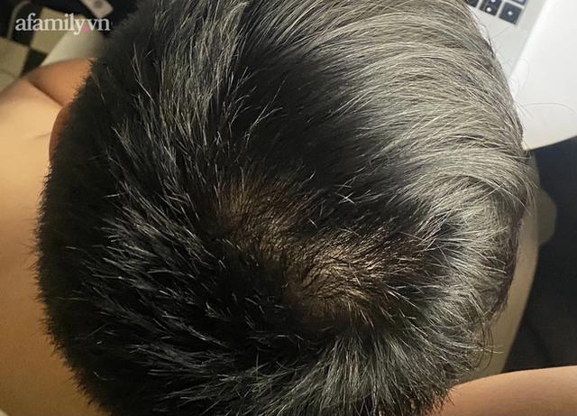 Thấy xuất hiện nhiều gàu ướt và bã nhờn trên tóc, coi chừng mắc căn bệnh ung thư dễ di căn não - Ảnh 2.