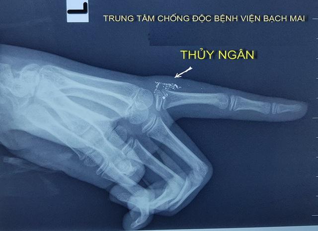 Tai nạn hy hữu lần đầu ghi nhận tại Việt Nam: Ngộ độc thuỷ ngân do vảy nhiệt kế - Ảnh 2.