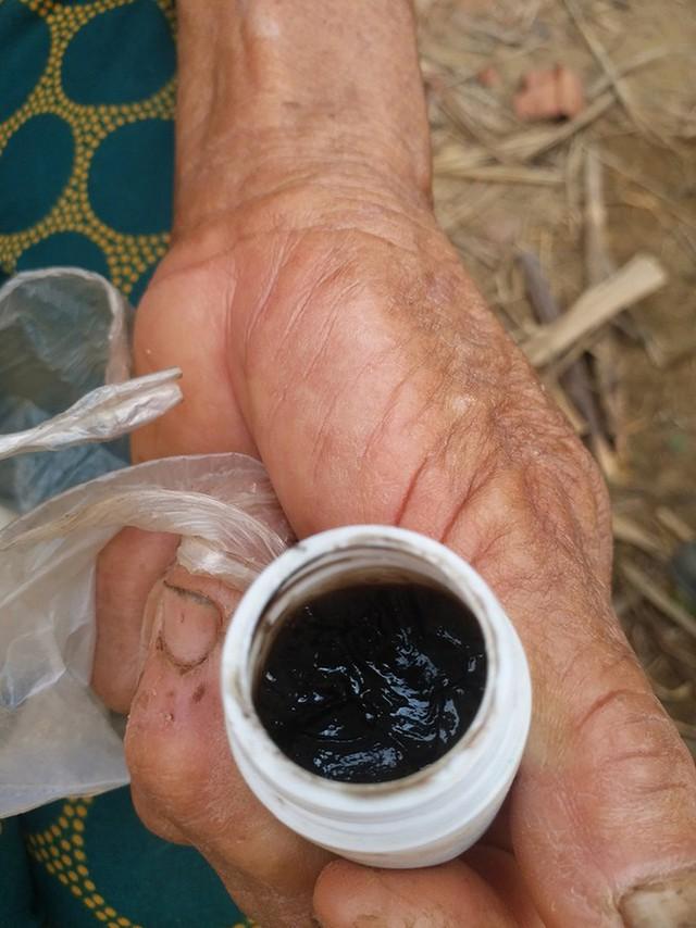 Sự thực Thần y Võ Hoàng Yên ra tay chữa bệnh tại Quảng Ngãi - Ảnh 4.