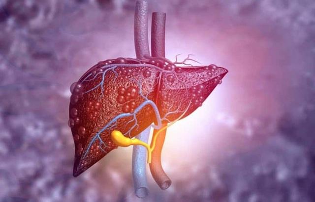 Chủ tịch Hội ung thư chỉ đích danh 2 vi rút, 1 vi khuẩn có thể gây ung thư, 2 loại rất phổ biến ở Việt Nam - Ảnh 1.