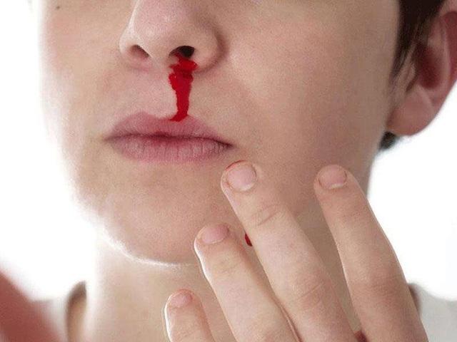 2 trường hợp tử vong do sốt xuất huyết, bất kì ai cũng cần biết những điều nên và không nên làm khi bị sốt xuất huyết - Ảnh 9.
