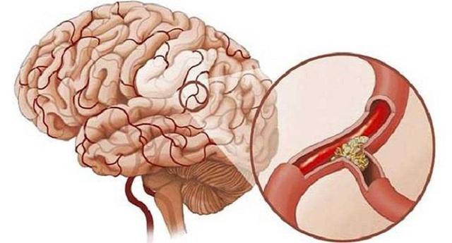 Sau 40 tuổi, cơ thể có 4 thay đổi này thì tốt nhất nên đi kiểm tra não - Ảnh 1.
