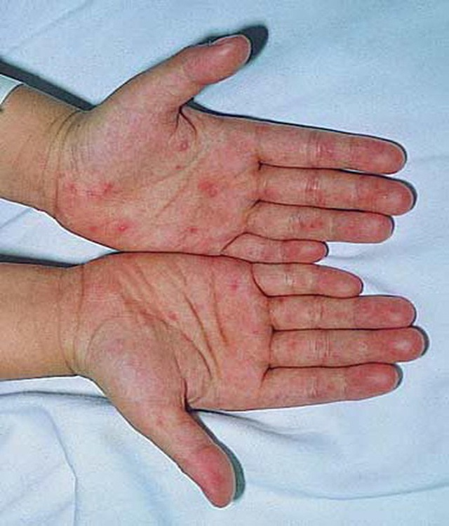 Bé 19 tháng tuổi tử vong nghi do tay chân miệng: Những biến chứng nghiêm trọng, cách nhận biết, điều trị bệnh cha mẹ cần nắm được - Ảnh 2.