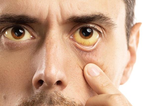 Gan kém có 4 dấu hiệu rõ rành rành sau, cần gặp bác sĩ ngay: Tuyệt chiêu bảo vệ gan trước khi quá muộn - Ảnh 2.