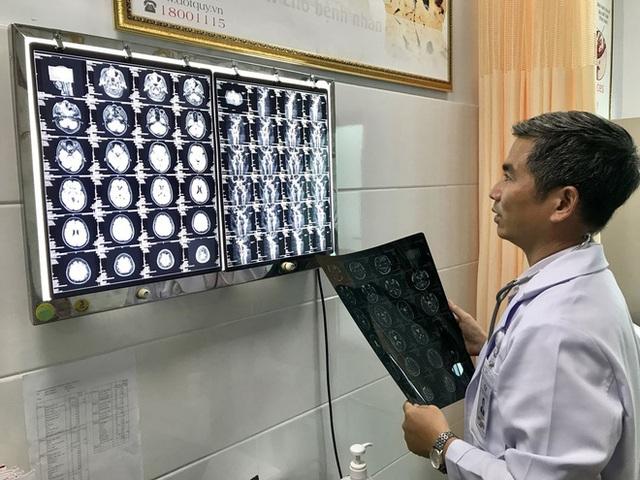Đột quỵ đang ngày càng trẻ hóa ở Việt Nam: Bác sĩ chỉ ra thủ phạm vô cùng quen mặt - Ảnh 2.