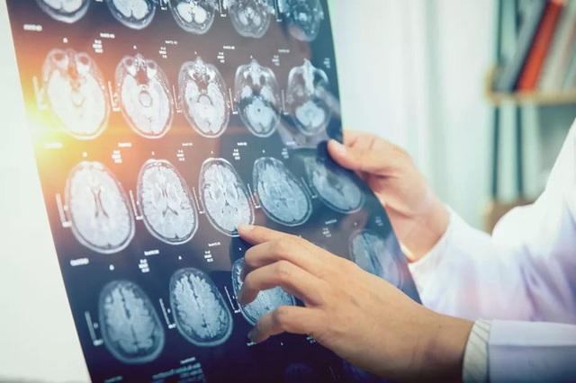 43 người Canada mắc bệnh lạ gây co thắt cơ bắp, mất trí nhớ và ảo giác - Ảnh 3.