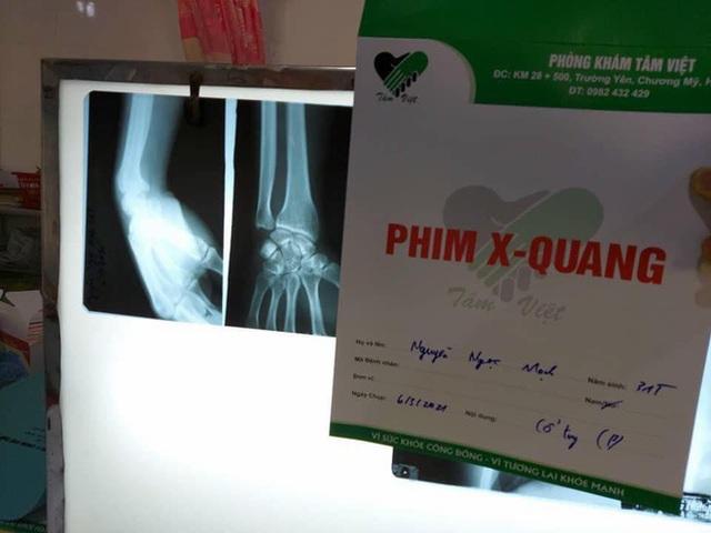 Người hùng Nguyễn Ngọc Mạnh bị rạn xương ngón tay, chưa bắt đầu công việc bình thường - Ảnh 3.