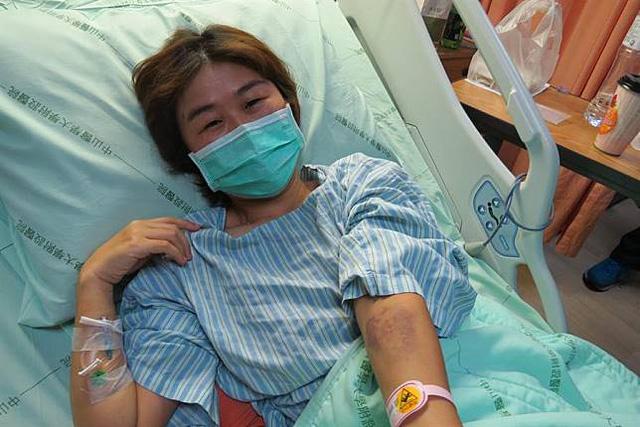Bị ung thư phổi, cô gái khóc nấc khi lỡ chủ quan bỏ qua dấu hiệu nguy hiểm này ở ngón tay - Ảnh 1.