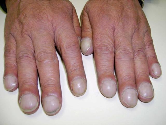 Bị ung thư phổi, cô gái khóc nấc khi lỡ chủ quan bỏ qua dấu hiệu nguy hiểm này ở ngón tay - Ảnh 2.