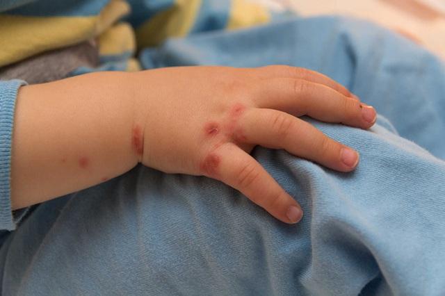 Cả nước ghi nhận hơn 18.400 ca mắc tay chân miệng, 4 trường hợp tử vong: Bệnh tay chân miệng có lây không? - Ảnh 5.