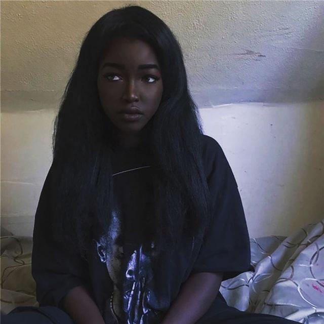 8 người sinh ra với màu da lạ kỳ chẳng giống ai nhưng lại đẹp đến mê hoặc: Từ búp bê Barbie đen đến cô gái bạch tạng đẹp nhất thế giới - Ảnh 15.