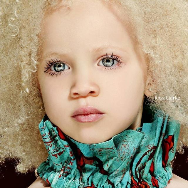 8 người sinh ra với màu da lạ kỳ chẳng giống ai nhưng lại đẹp đến mê hoặc: Từ búp bê Barbie đen đến cô gái bạch tạng đẹp nhất thế giới - Ảnh 8.
