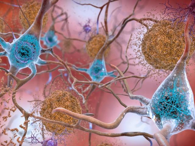 Chuyên gia Nhật Bản mách nhỏ cách ngăn ngừa bệnh sa sút trí tuệ: Mỗi ngày một bát súp, quét sạch rác não triệt để - Ảnh 1.