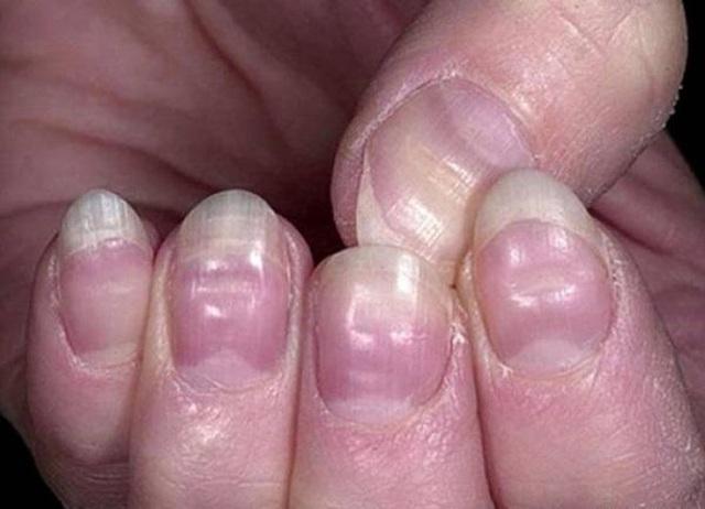 Có 4 dấu hiệu này xuất hiện trên bàn tay, cảnh báo mạch máu bị tắc nghẽn - Ảnh 4.