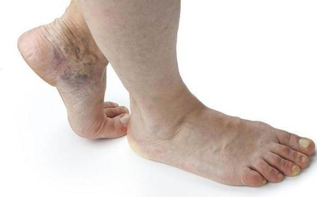 Nếu tín hiệu này xuất hiện trên bàn chân, cho thấy tim đang bị bệnh - Ảnh 1.