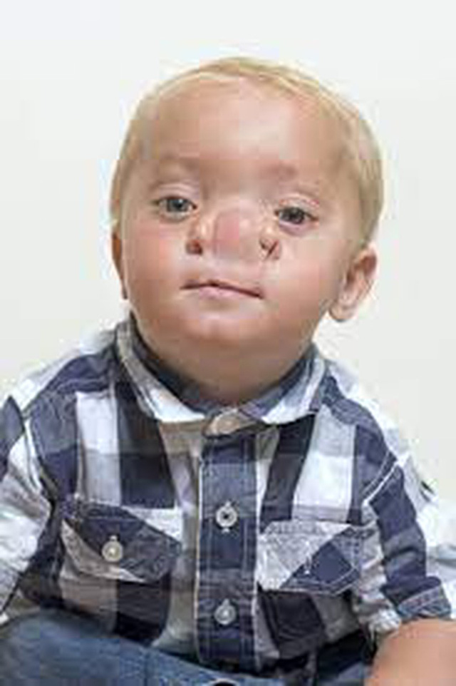 """Cậu bé Pinocchio đời thực"""" sinh ra với chiếc mũi to dị dạng khiến bố mẹ cũng sốc, gây bất ngờ với diện mạo sau ít năm - Ảnh 11."""