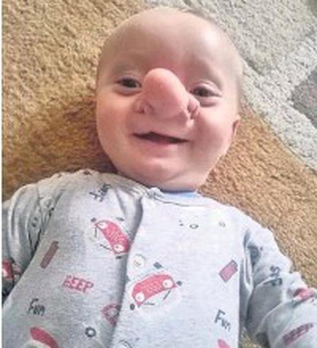 """Cậu bé Pinocchio đời thực"""" sinh ra với chiếc mũi to dị dạng khiến bố mẹ cũng sốc, gây bất ngờ với diện mạo sau ít năm - Ảnh 4."""