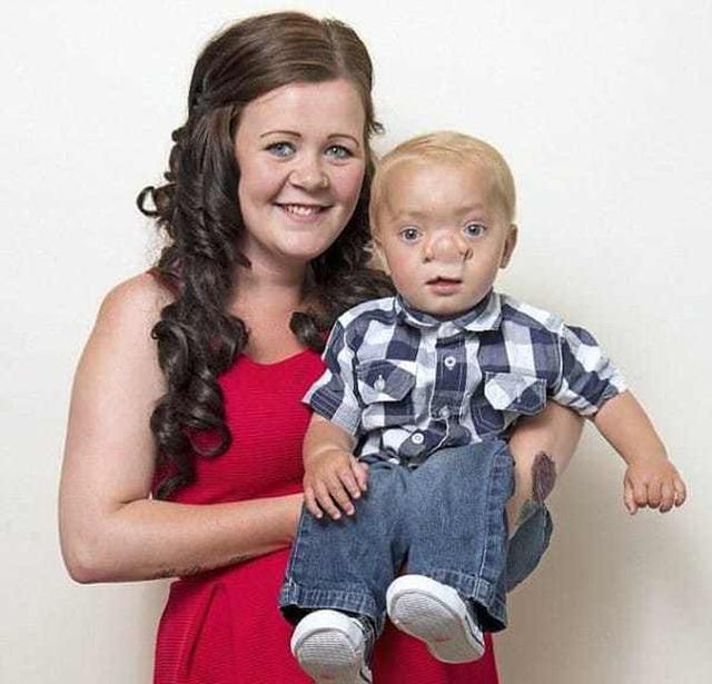 """Cậu bé Pinocchio đời thực"""" sinh ra với chiếc mũi to dị dạng khiến bố mẹ cũng sốc, gây bất ngờ với diện mạo sau ít năm - Ảnh 8."""