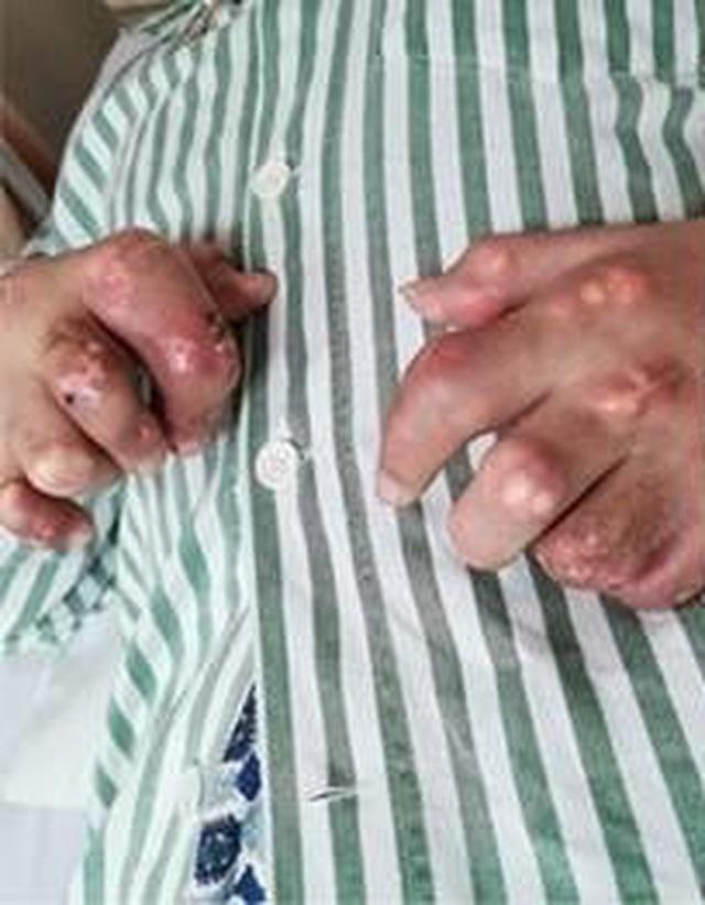 Chàng trai 27 tuổi bị thối chân, biến dạng khớp, bàn tay phủ đầy hạt tophi vì loại nước uống yêu thích của nhiều người - Ảnh 2.