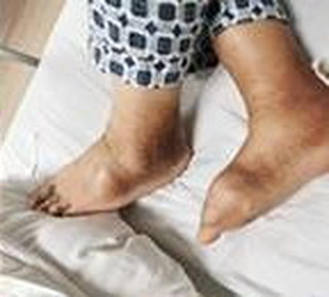 Chàng trai 27 tuổi bị thối chân, biến dạng khớp, bàn tay phủ đầy hạt tophi vì loại nước uống yêu thích của nhiều người - Ảnh 3.