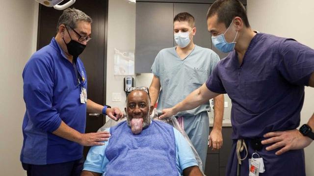 9 bệnh nhân Covid-19 ở Mỹ bị biến chứng lưỡi phình to dị thường, các bác sĩ đang cố gắng tìm ra lý do tại sao - Ảnh 1.