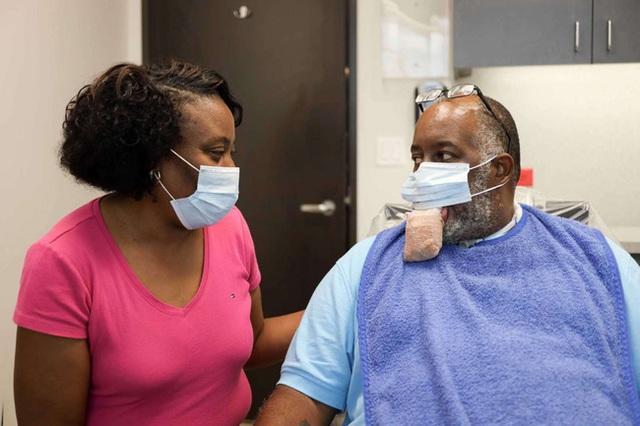 9 bệnh nhân Covid-19 ở Mỹ bị biến chứng lưỡi phình to dị thường, các bác sĩ đang cố gắng tìm ra lý do tại sao - Ảnh 2.